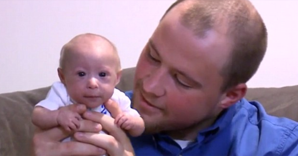 Primordial Dwarfism Baby Baby With Rare Growth ...